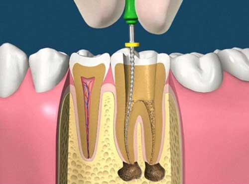 Endodonzia varese