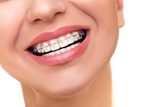 Ortodonzia fissa varese