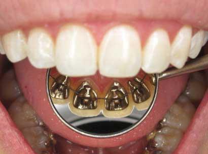 ortodonzia linguale Varese
