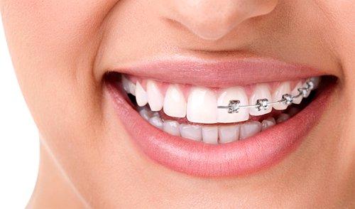 ortodonzia Varese