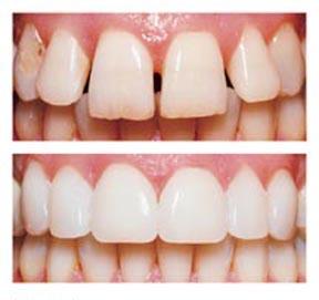 estetica denti Varese